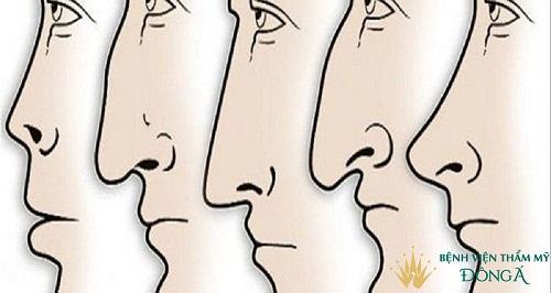 Nâng mũi phong thủy - Dáng mũi giúp bạn gặp được nhiều may mắn - Hình 1