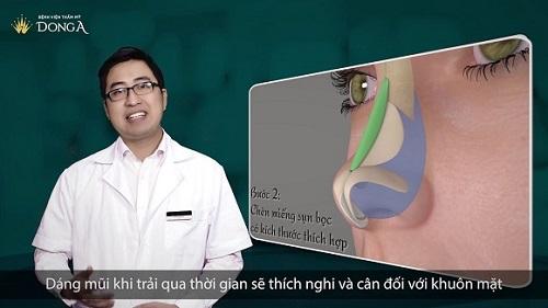 Nâng mũi SLine 3d là gì? 5 điểm khác biệt khiến chị em MÊ MẨN