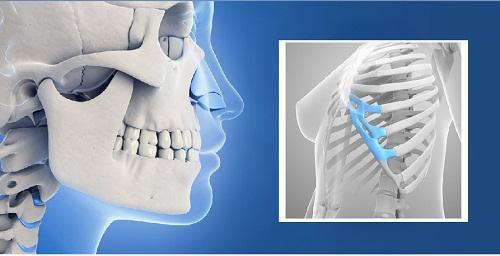 Nâng mũi sụn tự thân | 3 Loại sụn tăng tuổi mũi nâng Vĩnh Viễn - Hình 3