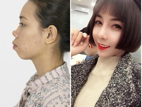 Nâng mũi sụn tự thân | 3 Loại sụn tăng tuổi mũi nâng Vĩnh Viễn - Hình 5