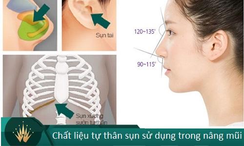 Nâng mũi bán cấu trúc - 7 Thông tin cần thiết cho Tín Đồ Làm Đẹp - Hình 6