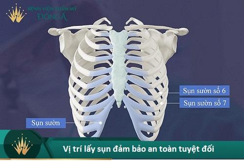 Nâng mũi cấu trúc có an toàn không? 5 Ưu điểm giúp bạn yên tâm - Hình 7