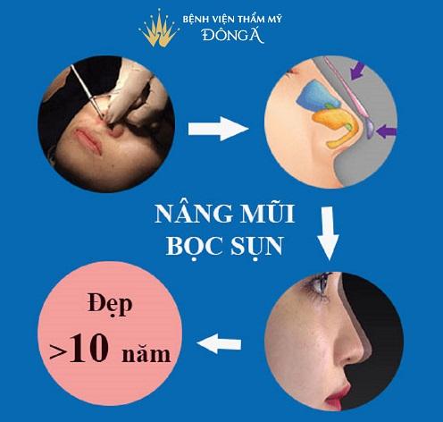 Nâng mũi bọc sụn là gì? 6 Thắc mắc được Bác sĩ Hàn Quốc giải đáp - Hình 4