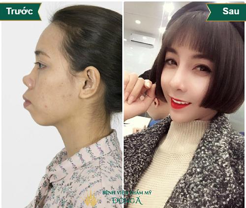 Nâng mũi bọc sụn là gì? 6 Thắc mắc được Bác sĩ Hàn Quốc giải đáp - Hình 6