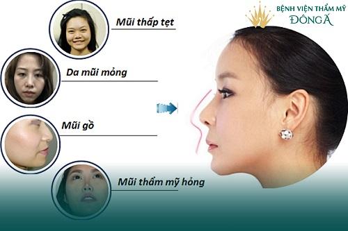 Nâng mũi bọc sụn tai - Phương pháp An Toàn cho Mũi đẹp Vĩnh viễn - Hình 3