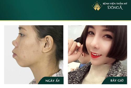 Nâng mũi bọc sụn tai - Phương pháp An Toàn cho Mũi đẹp Vĩnh viễn - Hình 9