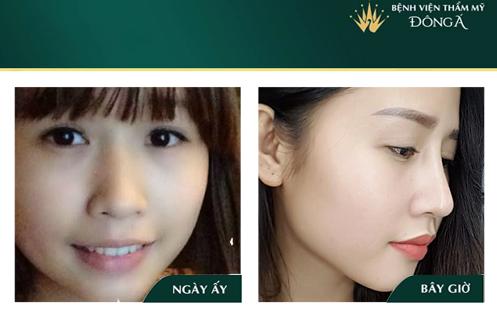Nâng mũi bọc sụn tai - Phương pháp An Toàn cho Mũi đẹp Vĩnh viễn - Hình 10