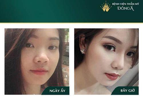 Nâng mũi bọc sụn tai - Phương pháp An Toàn cho Mũi đẹp Vĩnh viễn - Hình 8