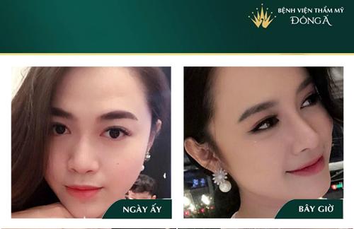 Nâng mũi bọc sụn tai - Phương pháp An Toàn cho Mũi đẹp Vĩnh viễn - Hình 11