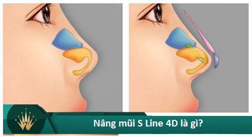 Nâng mũi S Line 4D - Giá tiền đi liền Chất Lượng - Đẹp Vĩnh Viễn - Hình 2