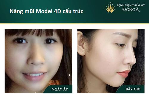 Nâng mũi S line cấu trúc - Nâng mũi giá tốt - Sao Việt thích mê - Hình 13
