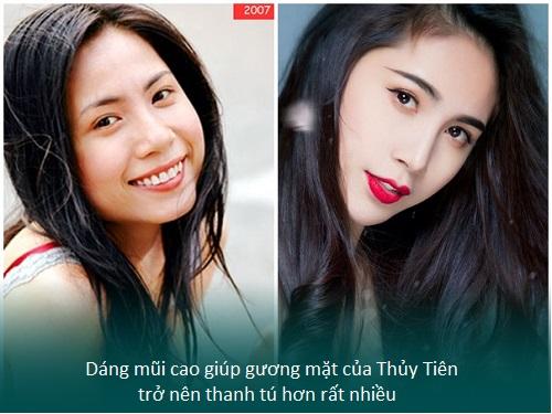 Nâng mũi S line cấu trúc - Nâng mũi giá tốt - Sao Việt thích mê - Hình 4