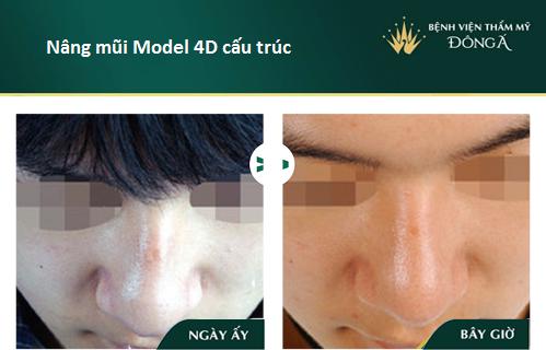 Nâng mũi S line cấu trúc - Nâng mũi giá tốt - Sao Việt thích mê - Hình 11