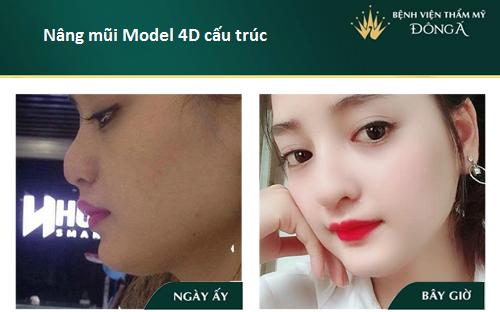 Nâng mũi S line cấu trúc - Nâng mũi giá tốt - Sao Việt thích mê - Hình 10