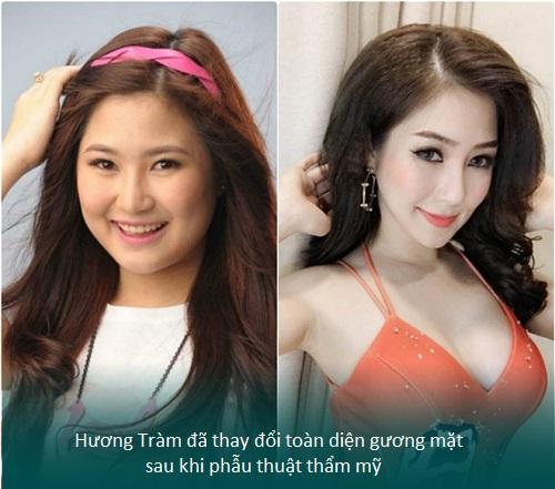 Nâng mũi S line cấu trúc - Nâng mũi giá tốt - Sao Việt thích mê - Hình 2
