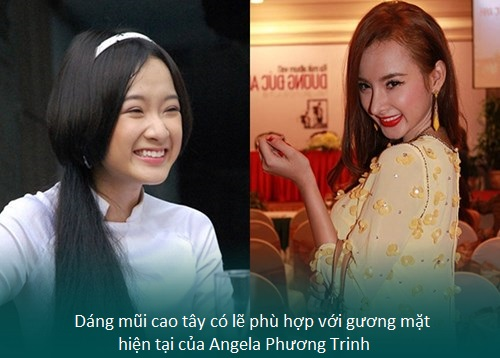 Nâng mũi S line cấu trúc - Nâng mũi giá tốt - Sao Việt thích mê - Hình 3
