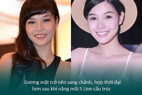 Nâng mũi S line cấu trúc - Nâng mũi giá tốt - Sao Việt thích mê - Hình 7