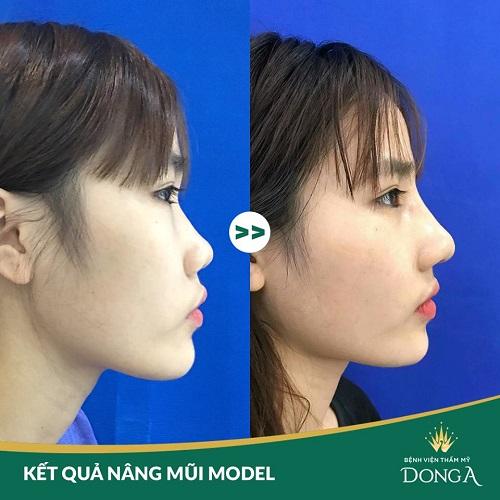 Nâng mũi S Line cấu trúc là gì | Giá nâng mũi bao nhiêu thì Đẹp lâu? Hình 7