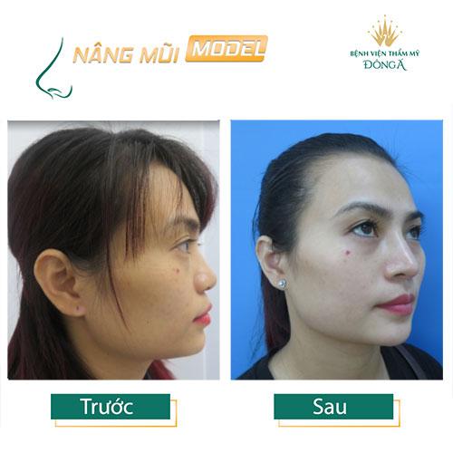 Nâng mũi S Line ở đâu Đẹp, An toàn và Rẻ nhất ở Hà Nội + TpHCM? Hình 11