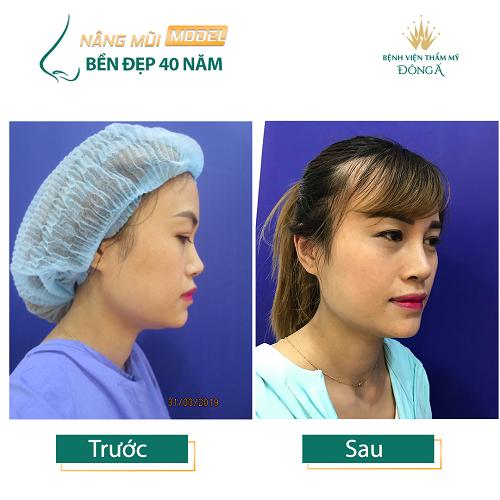 Nâng mũi S Line ở đâu Đẹp, An toàn và Rẻ nhất ở Hà Nội + TpHCM? Hình 9