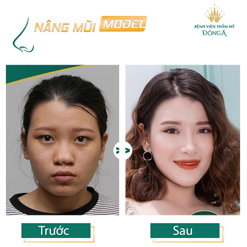 Nâng mũi S Line ở đâu Đẹp, An toàn và Rẻ nhất ở Hà Nội + TpHCM? Hình 10