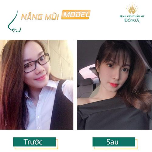 Nâng mũi S Line ở đâu Đẹp, An toàn và Rẻ nhất ở Hà Nội + TpHCM? Hình 12