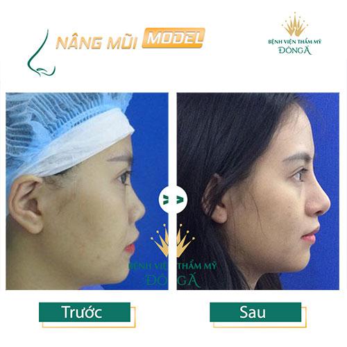 Nâng mũi S Line ở đâu Đẹp, An toàn và Rẻ nhất ở Hà Nội + TpHCM? Hình 13