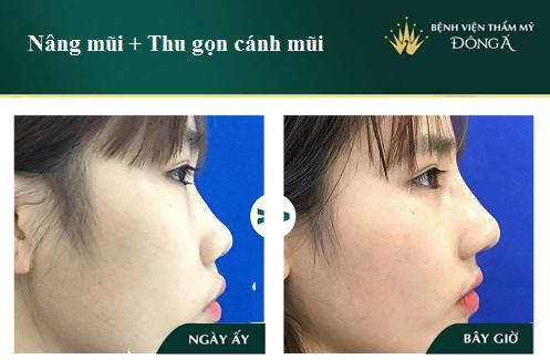 Nâng mũi và thu nhỏ cánh mũi có nguy hiểm, đau hay để lại sẹo? Hình 1