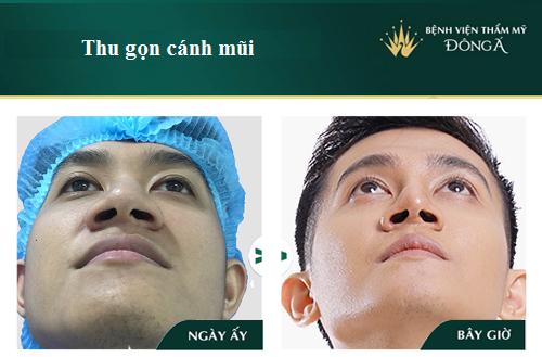 Nâng mũi và thu nhỏ cánh mũi có nguy hiểm, đau hay để lại sẹo? Hình 2
