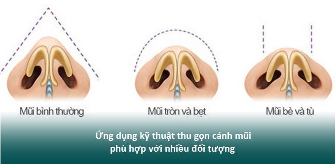 Nâng mũi và thu nhỏ cánh mũi có nguy hiểm, đau hay để lại sẹo? Hình 3
