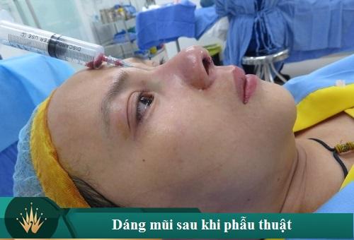 11 Cách chăm sóc mũi sau khi nâng cho mũi Sớm đẹp Tự Nhiên - Hình 1