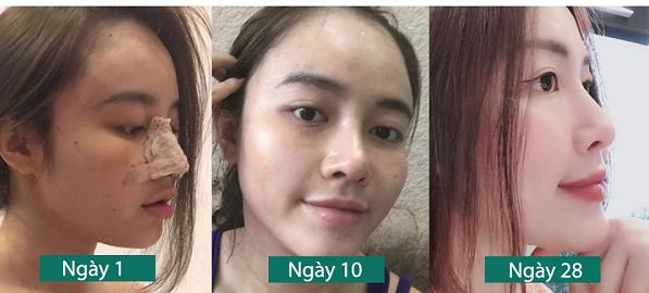 Cách chăm sóc mũi sau khi nâng Chuẩn cho Mũi đẹp sau 7 ngày - Hình 1