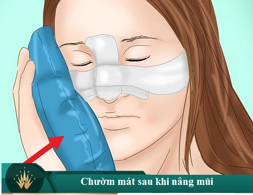 Cách chăm sóc mũi sau khi nâng Chuẩn cho Mũi đẹp sau 7 ngày - Hình 3