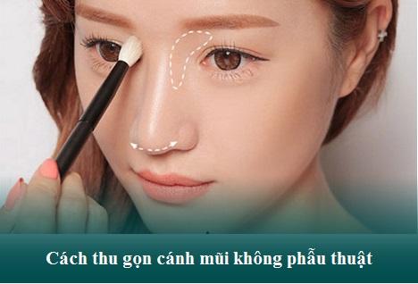 5 Cách thu gọn cánh mũi Tốt, An Toàn, cho mũi Đẹp Tự Nhiên nhất - Hình 4
