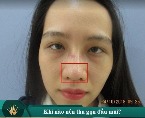 Cách thu gọn đầu mũi nội soi không phẫu thuật tại nhà là thế nào? Hình 1