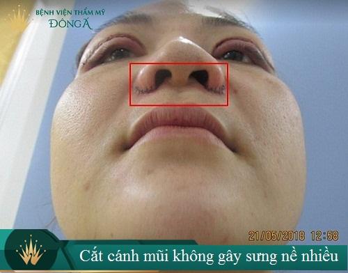 Cắt cánh mũi bao lâu thì lành? Làm gì để mũi lành nhanh hơn? Hình 1