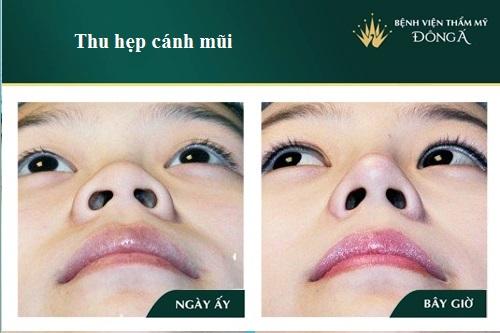 Cắt cánh mũi có hại không? Có Sưng hay Nguy Hiểm gì không? Hình 12