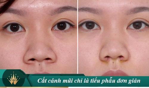 Cắt cánh mũi có hại không? Có Sưng hay Nguy Hiểm gì không? Hình 1