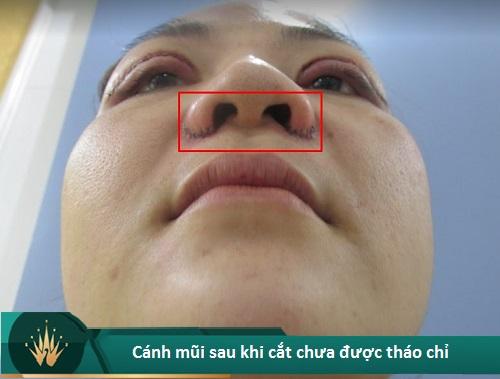 Cắt cánh mũi có hại không? Có Sưng hay Nguy Hiểm gì không? Hình 3