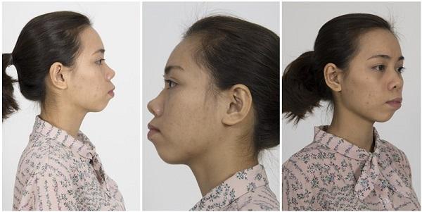 3 Cách nâng cao đầu mũi hiệu quả Đẹp tự nhiên không lo mũi đỏ - Hình 1