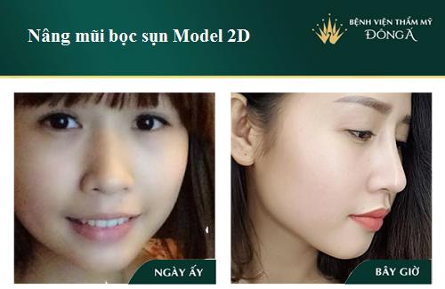 3 Cách nâng cao đầu mũi hiệu quả Đẹp tự nhiên không lo mũi đỏ - Hình 3