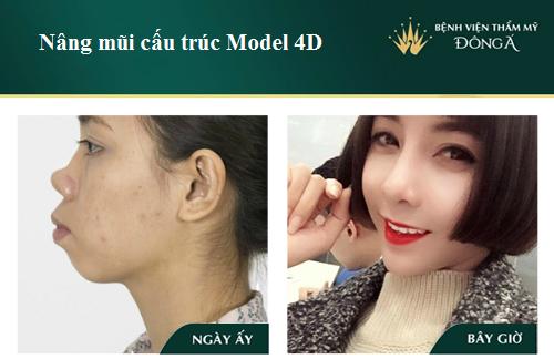 3 Cách nâng cao đầu mũi hiệu quả Đẹp tự nhiên không lo mũi đỏ - Hình 5