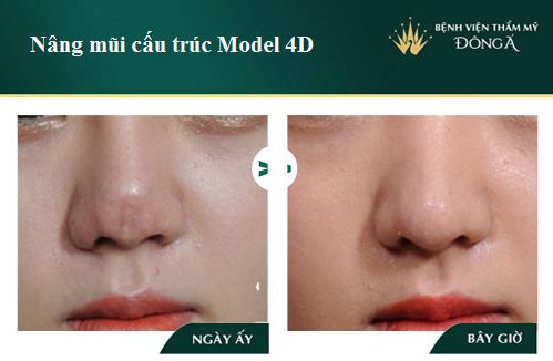 3 Cách nâng cao đầu mũi hiệu quả Đẹp tự nhiên không lo mũi đỏ - Hình 7