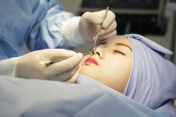 Phẫu thuật thu nhỏ cánh mũi - Không nguy hiểm, không để lại sẹo - Hình 5