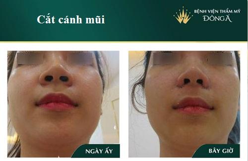 Phẫu thuật thu nhỏ cánh mũi - Không nguy hiểm, không để lại sẹo - Hình 1