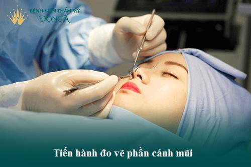 Hình ảnh, Video Clip Quy trình cắt cánh mũi Chuẩn theo Bộ Y Tế - Hình 2