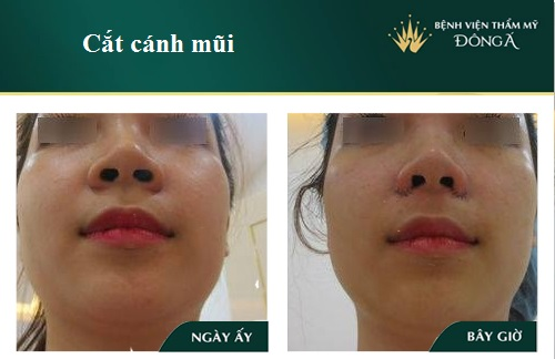 Hình ảnh, Video Clip Quy trình cắt cánh mũi Chuẩn theo Bộ Y Tế - Hình 4