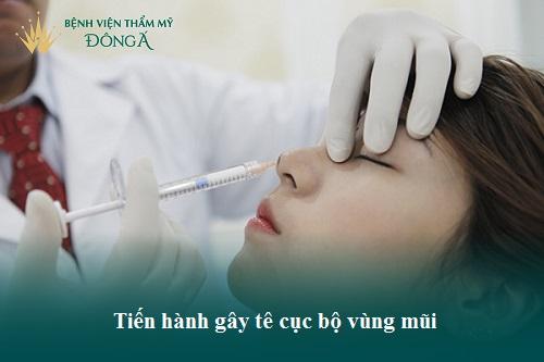 Hình ảnh, Video Clip Quy trình cắt cánh mũi Chuẩn theo Bộ Y Tế - Hình 3
