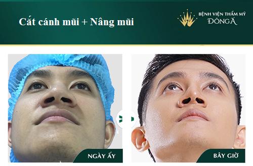 Hình ảnh, Video Clip Quy trình cắt cánh mũi Chuẩn theo Bộ Y Tế - Hình 8
