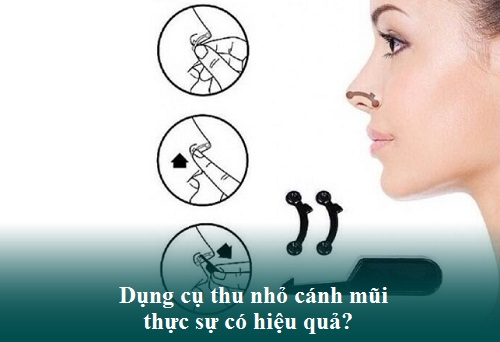 Thu nhỏ cánh mũi không phẫu thuật bằng Nội Soi Không Đau Đớn - Hình 1